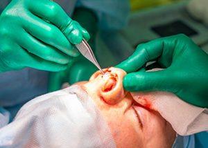 revision-rhinoplasty-sydney