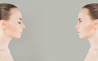 Revision Rhinoplasty Sydney: All you need to know