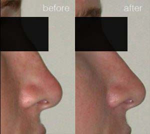 rhinoplasty before after_10