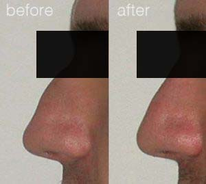 rhinoplasty before after 1