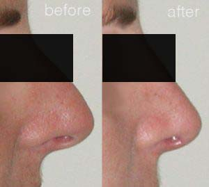 rhinoplasty before after 7