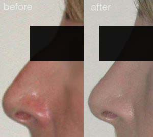 rhinoplasty before after 6