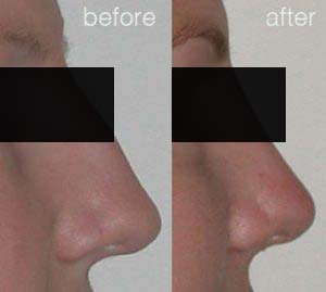 rhinoplasty before after 3