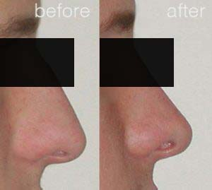 rhinoplasty before after 2