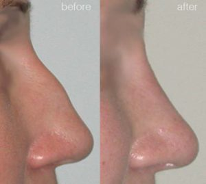 before-after-3-300x269