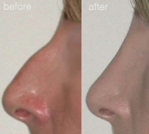 before-after-5-300x269
