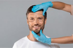 male preparing for a rhinoplasty surgery